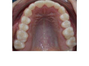 verdrongen tanden na behandeling met ClearBraces