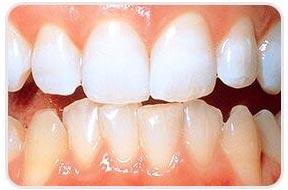 na tandarts tandenbleken