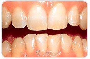 voor tanden bleken door de tandarts
